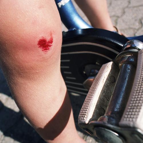 ... error Fahrrad fahren Fahrradfahren Kinderfahrrad Heftpflaster Kopfsteinpflaster Fußgängerzone üben Beginn Spielen Wunde Knie Sturz fallen Unfall Fehler