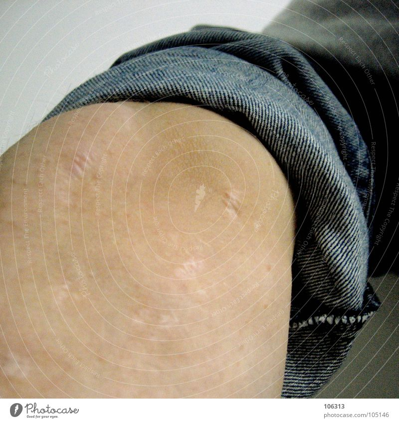TRAUMBERUF FLIESENLEGER maskulin Körper Haut Beine authentisch Gesundheit kaputt rebellisch Wade Nackte Haut Narbe Bildausschnitt Anschnitt Hosenbeine Operation