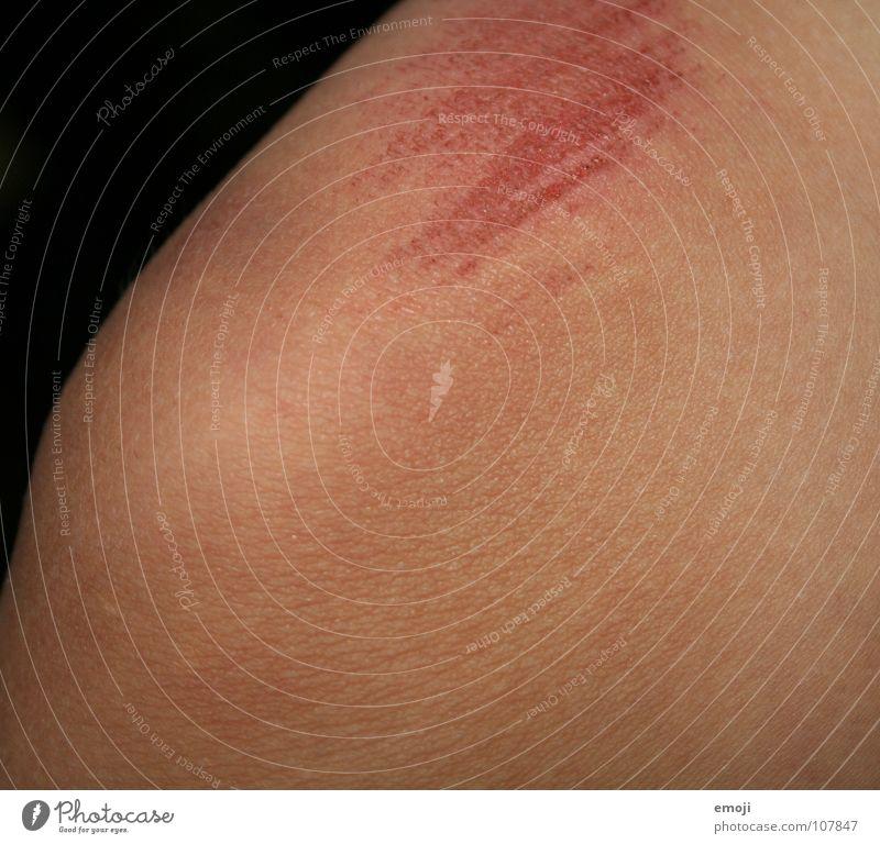 Liebeserklärung Spielen Beine Haut Spuren dünn Schmerz Schulter Skelett Knie Kampfsport Wunde Heilung Kratzer unverhüllt Kratzspur