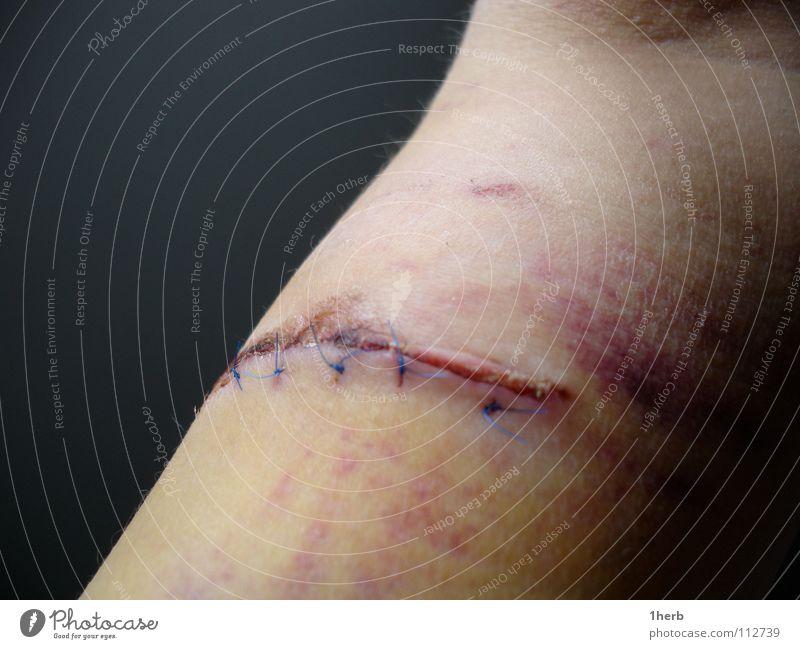 Bizepscut Naht Unfall Bluterguss Extremsport Narbe Schmerz Arme Wunde