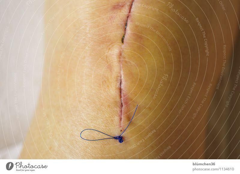 Glatter Schnitt... Mensch feminin Weiblicher Senior Frau Großmutter Körper Beine Knie Operation Künstliches Knie 60 und älter Krankheit Wunde Heilung