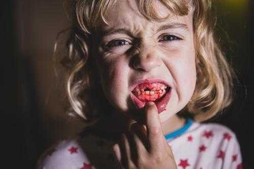 Zahnfee Kind Jugendliche Junge Frau Mädchen feminin Angst Kindheit blond Gebiss Schmerz Blut verstört 3-8 Jahre Zahnfleisch Zahnlücke fletschen