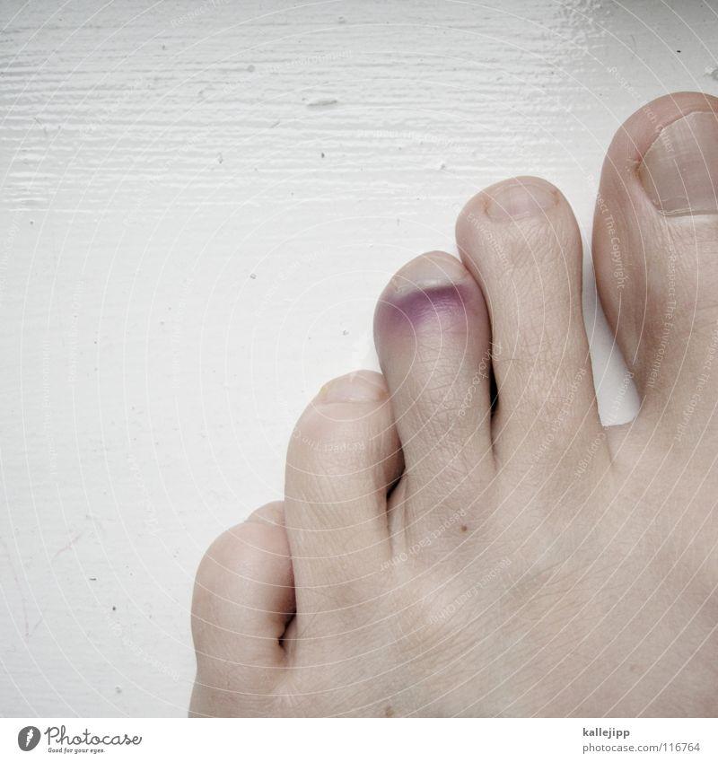 kollateralschaden Zehen Zehennagel gebrochen 5 unaufmerksam Fehler Beule Unfall Barfuß violett Bluterguss Prellung Mensch Wut Ärger Fuß stolpern Tanz in den Mai