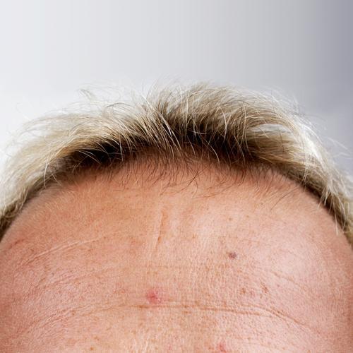 Knie Stirn Haare & Frisuren Haut Kopf forehead skin