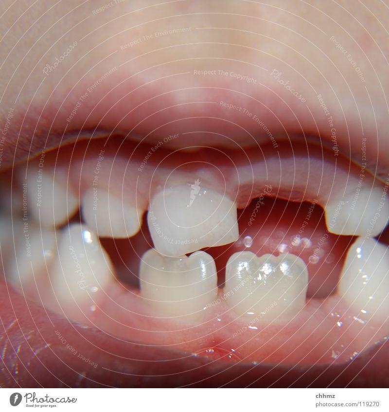 Baustelle Zahnlücke Milchzähne Schneidezahn Zähne Zahnarzt Zahnfleisch bohren Amalgam Füllung Kind Raffel Mund Lippen Eckzahn Eckzähne Zunge Karies Brücke