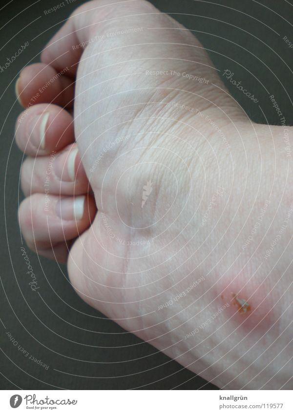 Mückenstich Hand Haut Insekt Wunde Heilung Stich Stichwunde Juckreiz Insektenstich Röte Schwellung