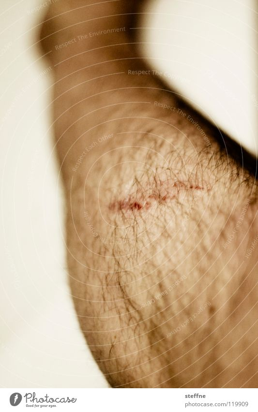 Auaweh! Mensch Mann Beine Behaarung Bildausschnitt Wunde Heilung Kratzer Schramme Schürfwunde Männerbein