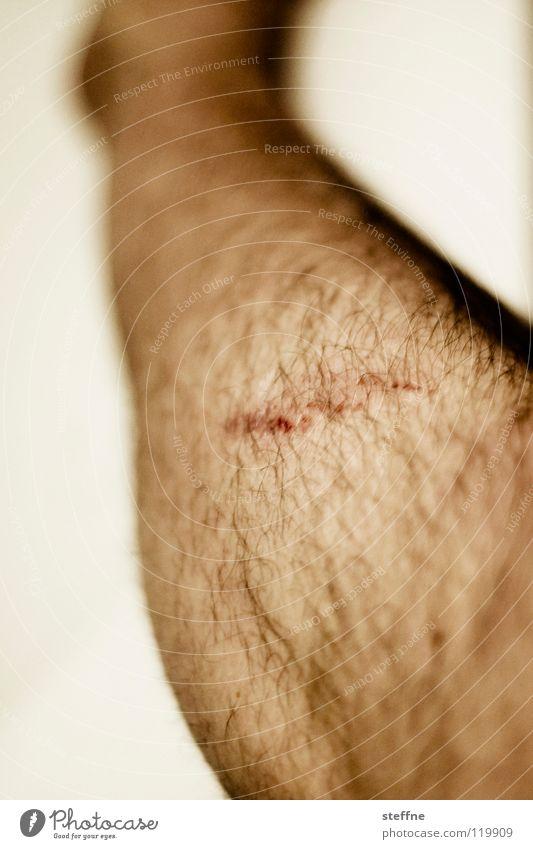 Auaweh! Wunde Kratzer Schürfwunde Mann Mensch Beine Schürfung Schramme Männerbein Detailaufnahme Bildausschnitt Heilung Behaarung