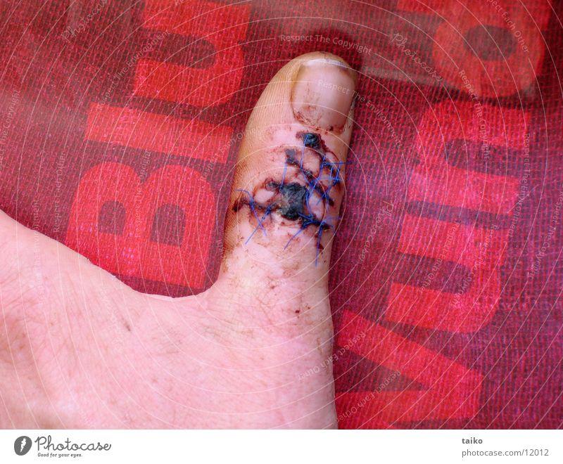 ...blut & wunden... Daumen Wunde Kruste rot Hand Chirurgie Handkreissäge Ekel Handwerk Unfall obskur Schmerz Blut blauer Faden Glück gehabt Shit happens