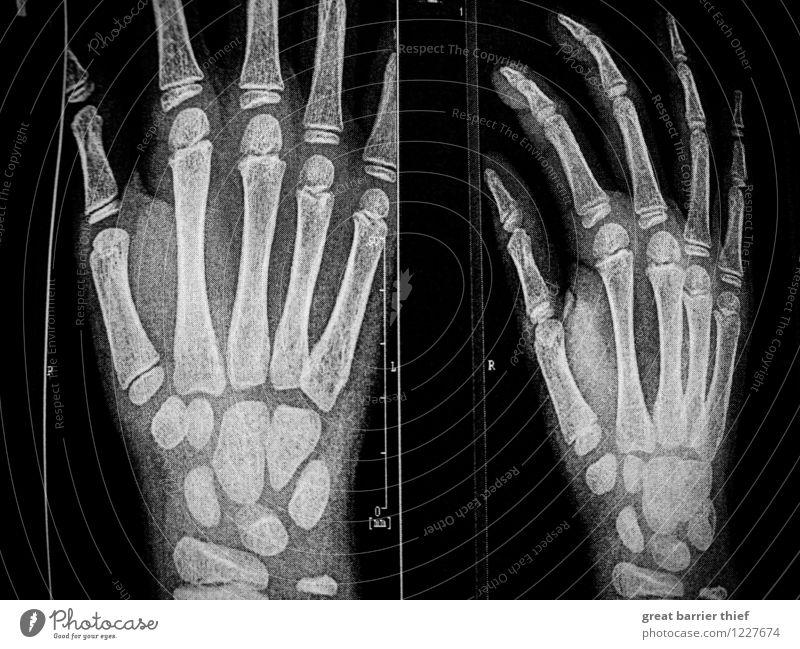 Skeletthände Röntgenbild Mensch maskulin Junge Hand Finger 3-8 Jahre Kind Kindheit authentisch gruselig schwarz weiß Schwarzweißfoto Innenaufnahme Nahaufnahme