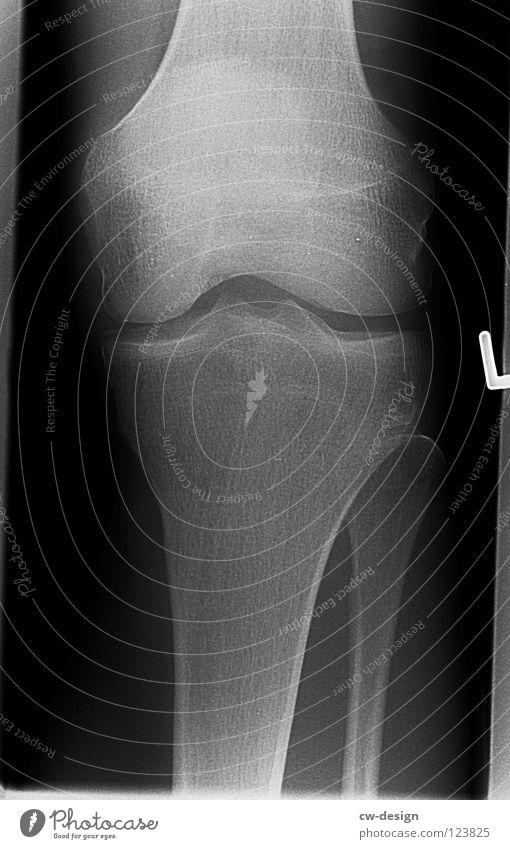 GHOST Röntgenbild Röntgenstrahlen Skelett Oberschenkel Unterschenkel Schienbein Gelenk Kniescheibe Sprunggelenk Arthrose Fraktur Krankheit links Sturz schwarz