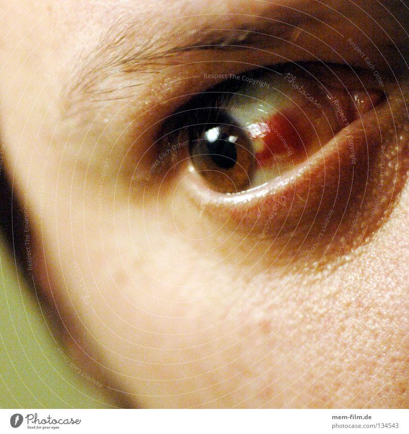 auf auge rot Auge braun Gesundheitswesen Krankheit Blut Ekel Gefäße Optiker Augenheilkunde