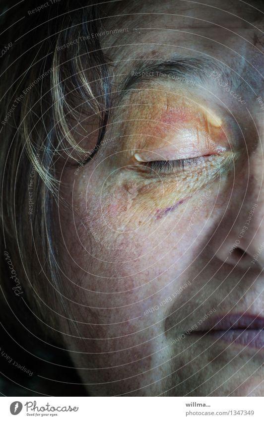 Sturzverletzung im Gesicht , Bluterguss, auch Veilchen genannt Blaues Auge (Bluterguß) Frau Erwachsene Weiblicher Senior Schmerz Gewalt Unfall Prellung