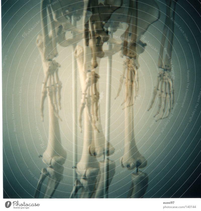 Holga? No, grazie! Doppelbelichtung Italien Skelett Ossis Kniescheibe Radius Kreuzbein Arzt Anatomie Oberschenkel Unterschenkel Speichen Finger Hand analog