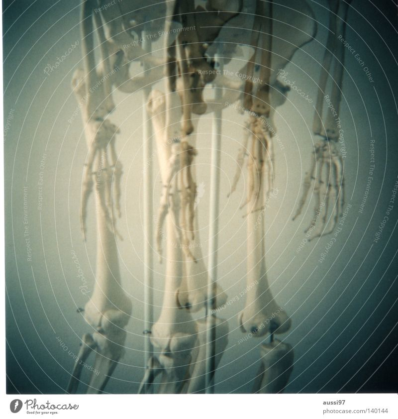 Holga? No, grazie! Hand Finger Arzt Italien analog Doppelbelichtung Skelett Knie Mittelformat Oberschenkel Anatomie Speichen Radius Unterschenkel Ossis Kniescheibe