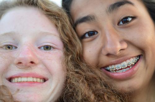 friends Lifestyle Freude Glück Haut Gesundheit Leben Mensch feminin Junge Frau Jugendliche Kopf Haare & Frisuren Gesicht Auge Nase Mund Zahnspange 2 13-18 Jahre