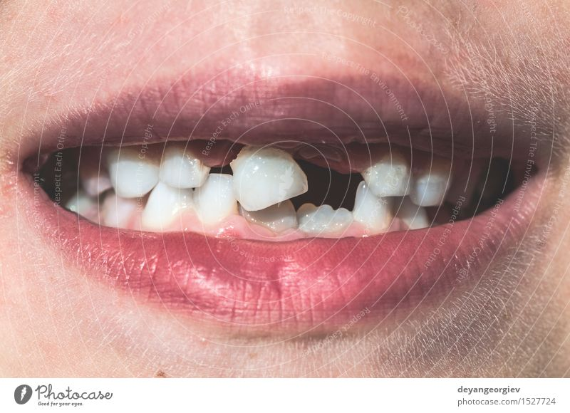 Kind zeigt fehlende Zähne. Glück Gesicht Junge Kindheit Mund Lächeln niedlich weiß melken verirrt erste Verlust Hintergrund Pflege Ausdruck Vorderseite zeigen