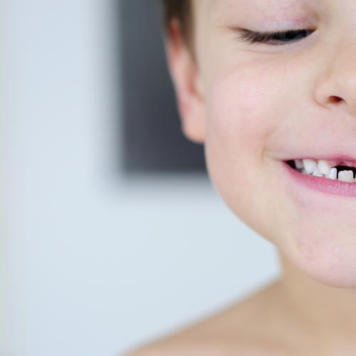 Mut zur Lücke Zahnlücke Zähne leer Kind Gesicht lachen Erinnerung Wackelzahn Fröhlichkeit Freude Wachstum Zahnfee