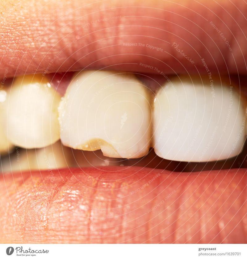 Makroaufnahme des gebrochenen Zahnes. Gesundheitswesen Behandlung Prüfung & Examen Beruf Mensch Mund Lippen Zähne 1 Ekel Sauberkeit gelb weiß Schaden Probleme