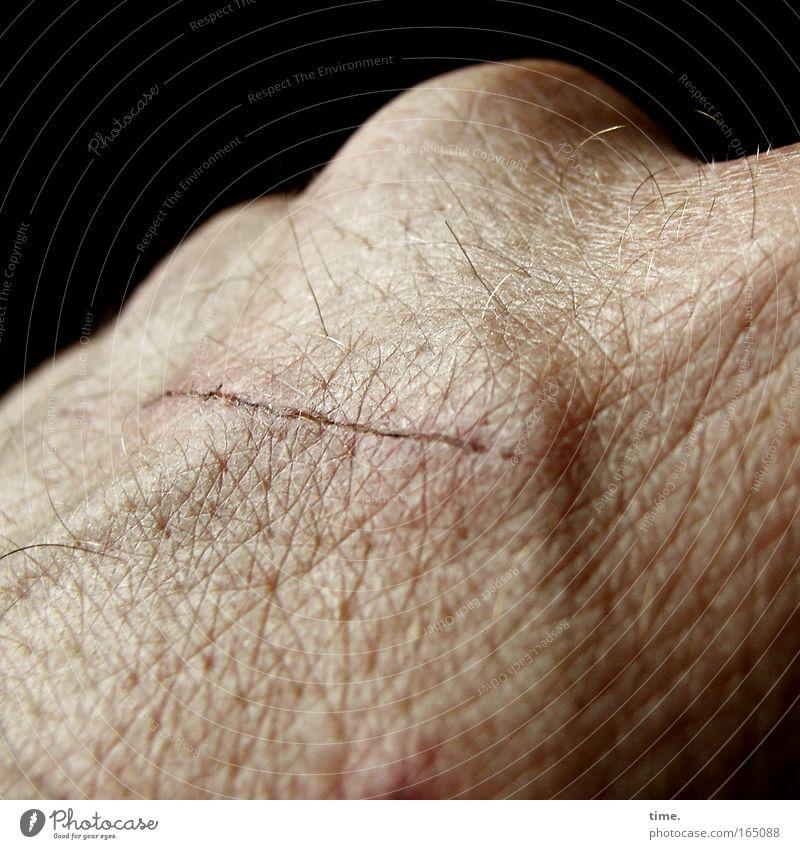 Lebenslinien #08 Haut Hand rund Narbe Handknöchel Kruste Heilung Gefäße Schramme Kratzer Behaarung Pore Freisteller Vor dunklem Hintergrund Anschnitt