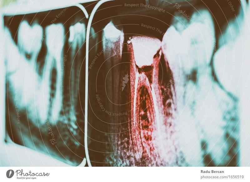 Schmerz des Zahnverfalls auf Zahn-Röntgenstrahl Mensch Jugendliche blau rot 18-30 Jahre Erwachsene Gesundheit Gesundheitswesen gefährlich Zähne Risiko
