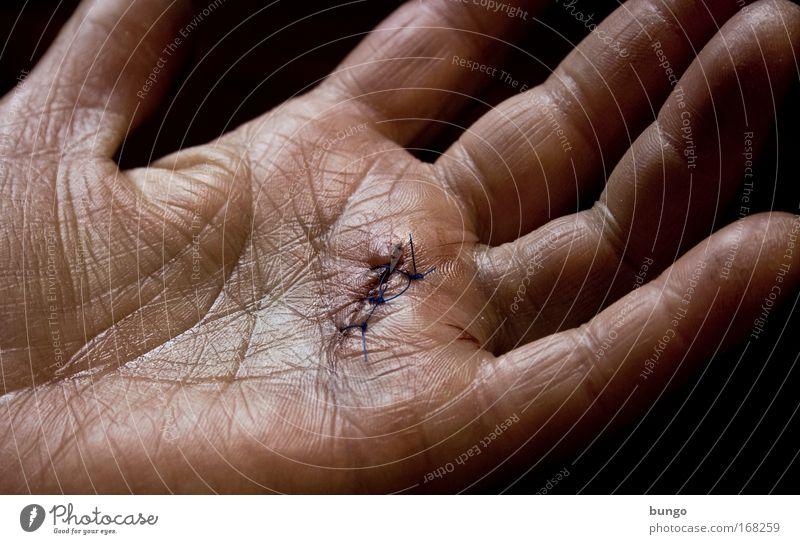 vita vulnerat Frau Hand Erwachsene Traurigkeit Haut Finger Gesundheitswesen Hautfalten Krankheit Schmerz Nähgarn Nähen Wunde Heilung Operation