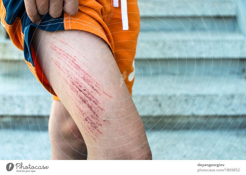 Bruise Wunde am Bein des Kindes Haut Medikament Mensch Junge Kindheit Arme rot weiß Schmerz blaue Flecken Knie zerkratzen Unfall Blut Gesundheit verletzt wehtun