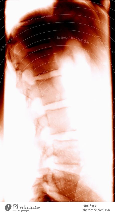 röntgen04 Mensch Rücken Strahlung Skelett