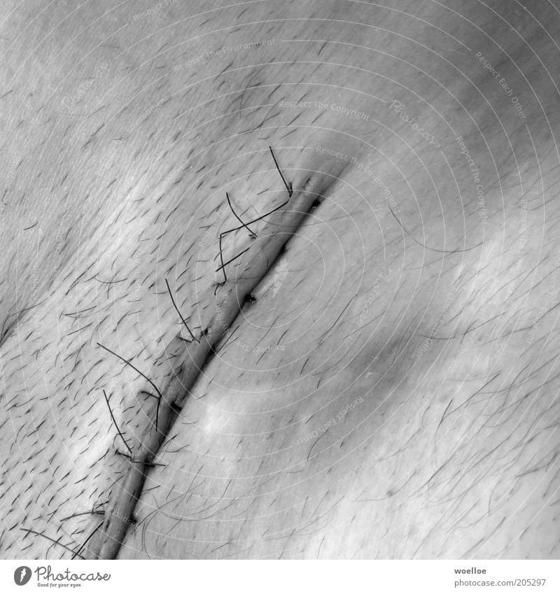 Bauchweh maskulin Mann Erwachsene Haut Leiste Lende Intimbereich Schamhaare Narbe Naht 1 Mensch kaputt Krankheit stachelig Schmerz Heilung Leistenbruch