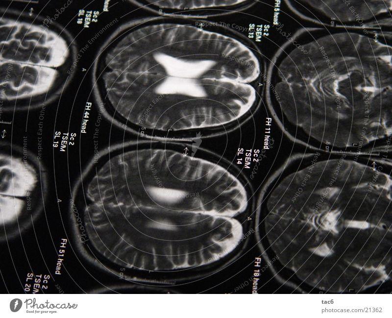 Kernspinserie Nr.1 Gehirn u. Nerven Elektrisches Gerät Technik & Technologie Schädel durchleuchten Kopf Fotografie Kernspintomographie Diagnostik Röntgenbild