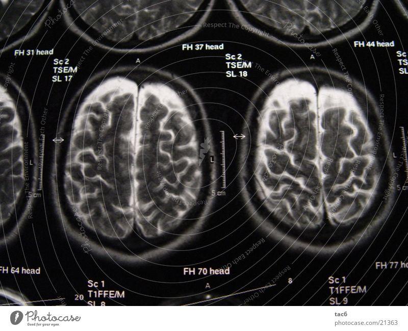 Kernspinserie Nr.4 Kopf Fotografie Technik & Technologie Gehirn u. Nerven Schädel Elektrisches Gerät Kernspintomographie