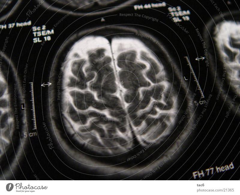 Kernspinserie Nr.3 Kopf Fotografie Technik & Technologie Gehirn u. Nerven Schädel Elektrisches Gerät Kernspintomographie