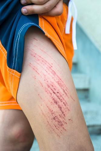 Bruise Wunde am Bein des Kindes Mensch weiß rot Junge Kindheit Haut Arme Medikament Schmerz Blut geschnitten Knie Schramme wehtun