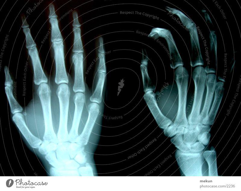 XRay Röntgenstrahlen Hand Arzt Skelett Gesundheitswesen Fototechnik Radiologie