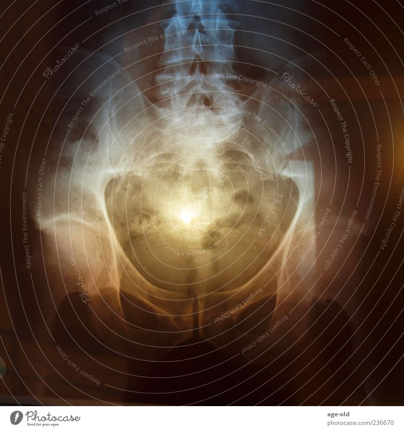 X-ray on sunset Mann blau schwarz Erwachsene gelb braun bizarr Gesundheitswesen Hüfte Sonnenuntergang Licht Röntgenbild Radiologie