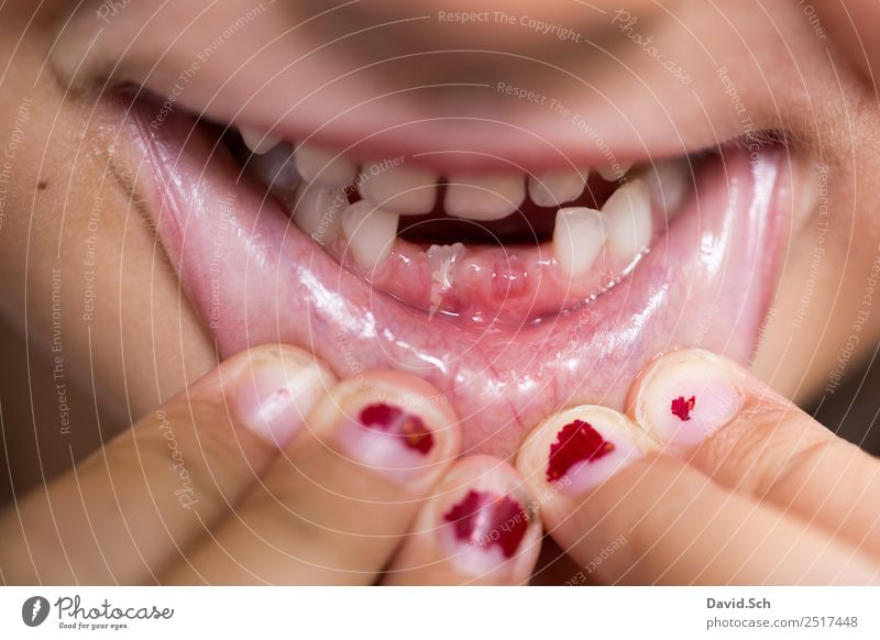 Zahnlücke Gesundheit Mensch Kind Mädchen Mund Lippen Zähne Finger 1 3-8 Jahre Kindheit festhalten braun orange rot Freude Begeisterung selbstbewußt Stolz