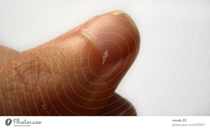 Gebrochener Nagel Daumen Finger Fingernagel Daumennagel Makroaufnahme Nahaufnahme gebrochener Nagel