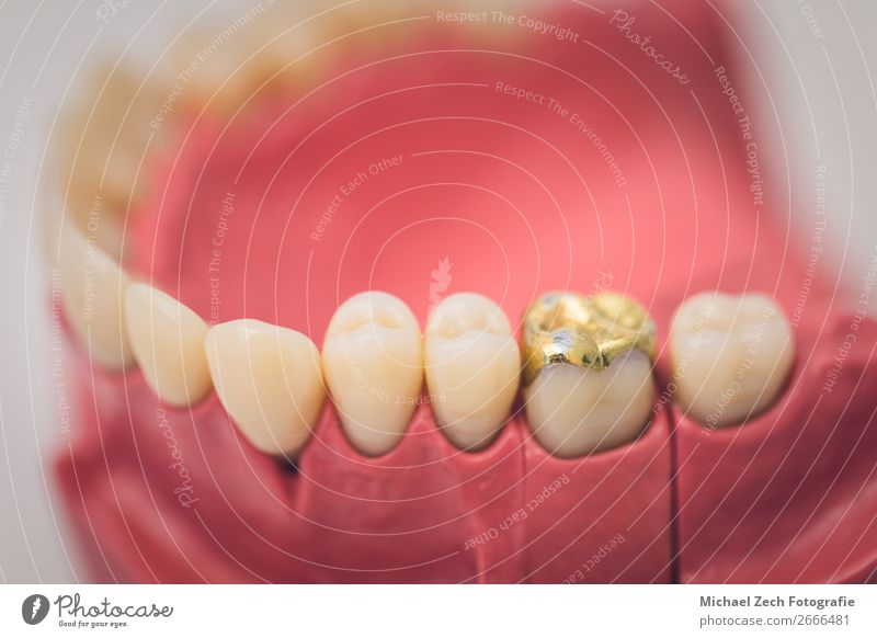 Detaillierte Nahaufnahme von Zahnprothesen oder Zähnen auf einem Tisch Design Krankheit Medikament Spiegel Arzt Büro Krankenhaus Sauberkeit weiß Zahnarzt dental