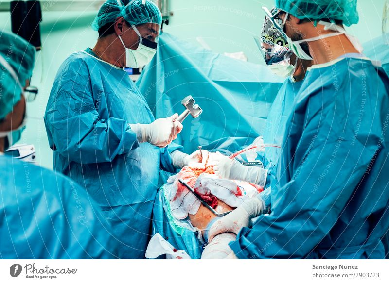 Team von operierenden Chirurgen. Operation Chirurgie in Betrieb befindlich chirurgisch Krankenhaus Wunde Prothesen Blut Knochen orthopädisch Implantat offen