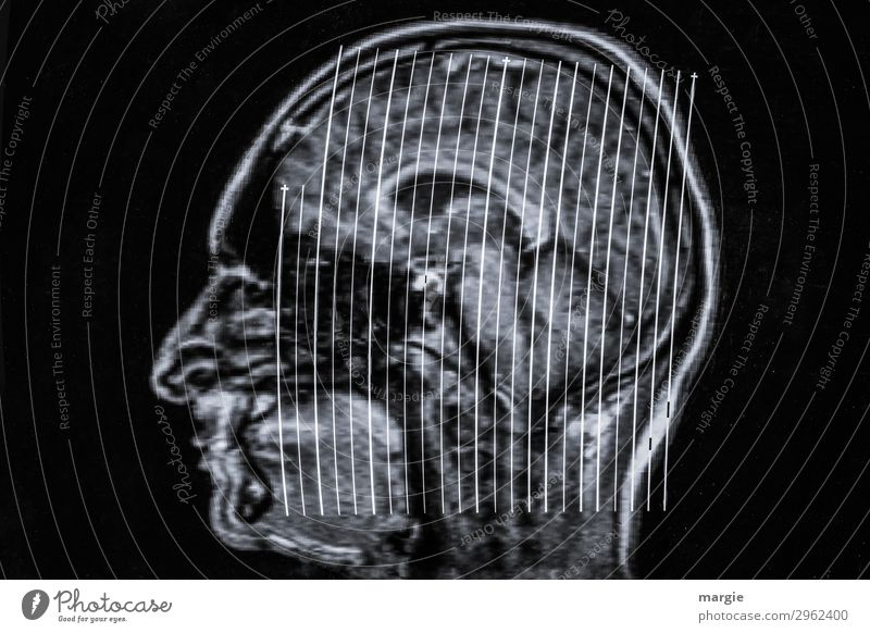 UT Kassel | Dickkopf Gesundheitswesen Technik & Technologie Wissenschaften High-Tech Mensch maskulin feminin androgyn Frau Erwachsene Mann Gesicht Nase 1