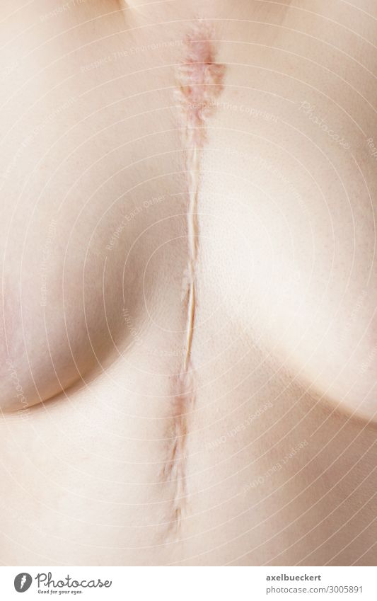 Herz OP Narbe Gesundheitswesen Mensch feminin Junge Frau Jugendliche Erwachsene Brust Frauenbrust 1 18-30 Jahre nackt Operation herzoperation herz-OP op-narbe