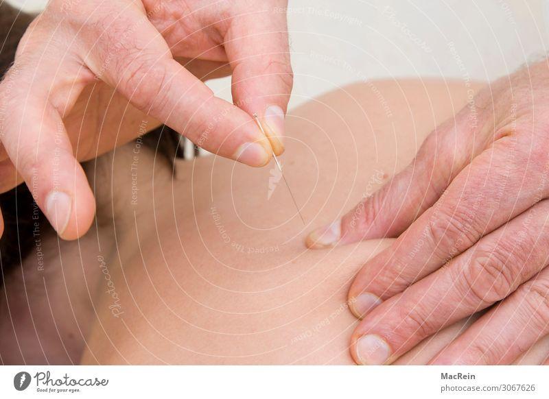Akupunktur Gesundheit Behandlung Alternativmedizin Krankheit Wohlgefühl Erholung Meditation Mensch feminin Junge Frau Jugendliche Erwachsene Körper Haut Rücken
