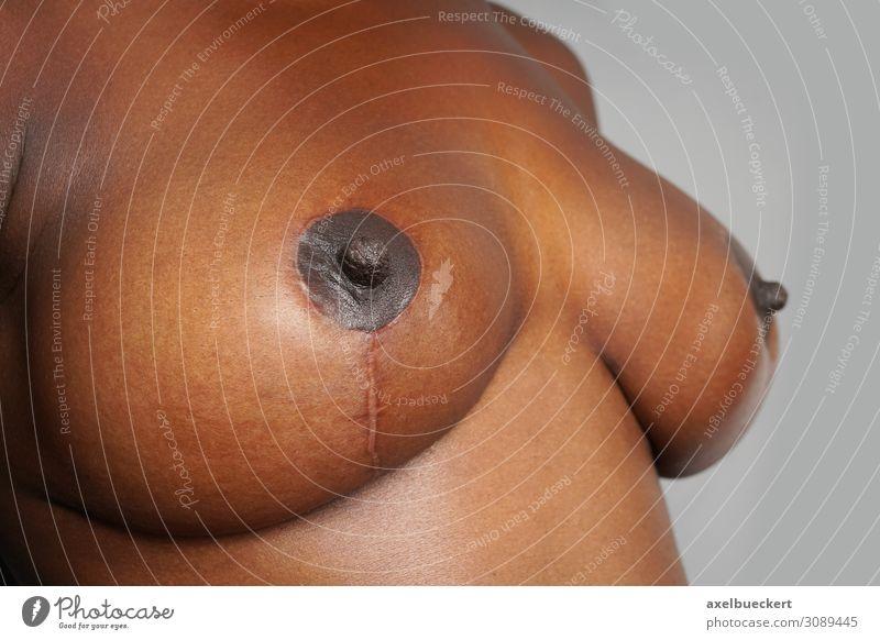 Narben nach Brust-OP schön Körper Gesundheitswesen Behandlung Mensch feminin Junge Frau Jugendliche Erwachsene Frauenbrust 1 18-30 Jahre 30-45 Jahre ästhetisch