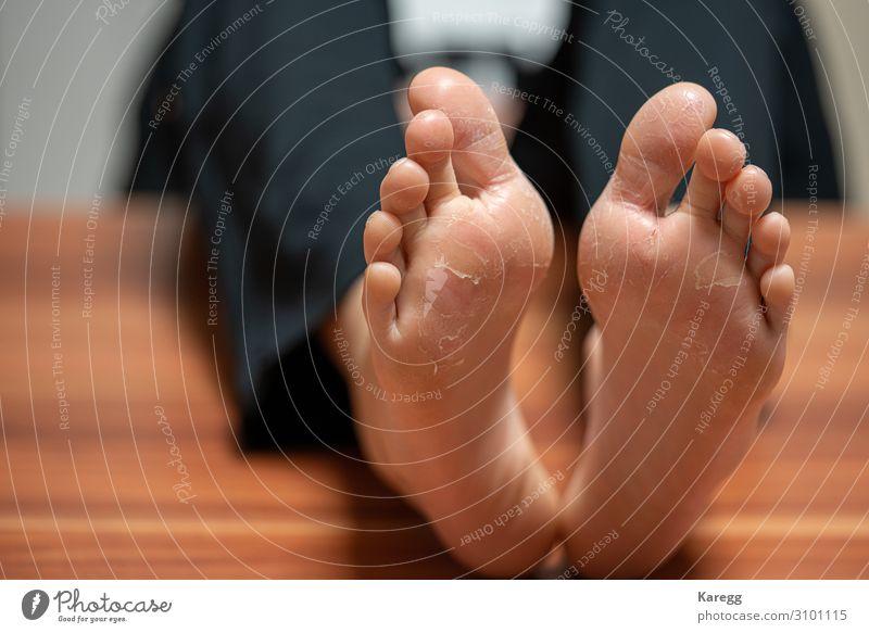 on a pair of feet the skin detaches due to eczema Mensch maskulin Frau Erwachsene Fuß rosa painful foot health care illness dermatological peeling flaky