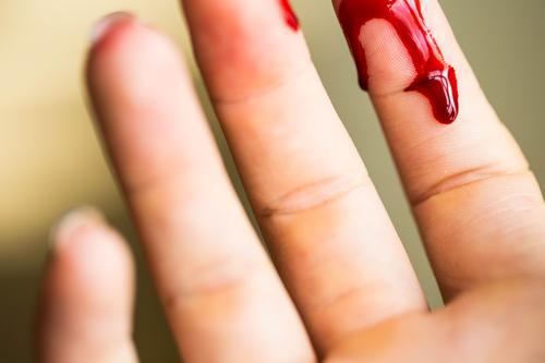 Frau Mensch weiß rot Hand Erwachsene Gesundheitswesen Körper Haut Finger Tropfen Medikament Schmerz Krankenhaus Daumen Blut
