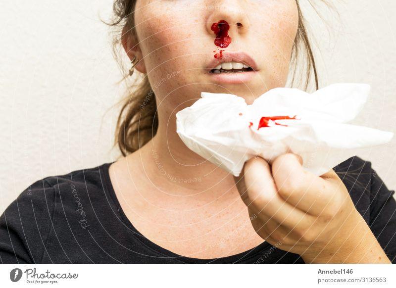 Wunde Nasenbluten, Frau blutet aus der Nase. Körper Haut Gesicht Gesundheitswesen Krankheit Medikament Erholung Mensch Erwachsene Mund Tropfen klein rot weiß