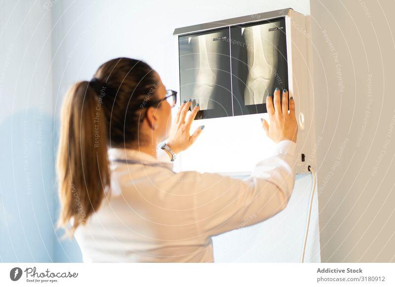 Junger Arzt mit Röntgenfilmdokument an der Wand Medikament Radiologie Uniform Filmmaterial Bild Raum Frau Blick Jugendliche Röntgenaufnahme Scan Chirurg