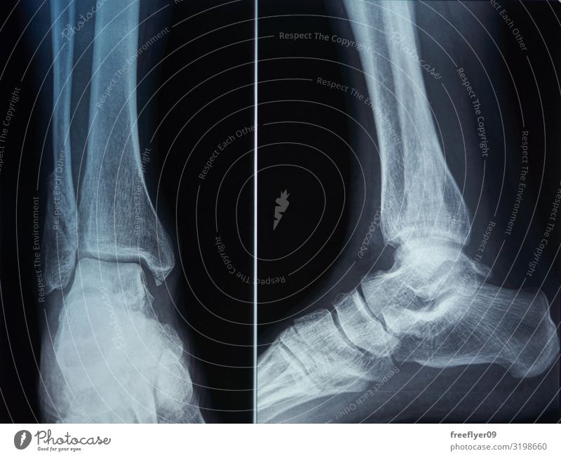 Knochenscan eines Fußes Körper Gesundheitswesen Seniorenpflege Krankheit Medikament Wellness Wissenschaften Prüfung & Examen Arzt Krankenhaus