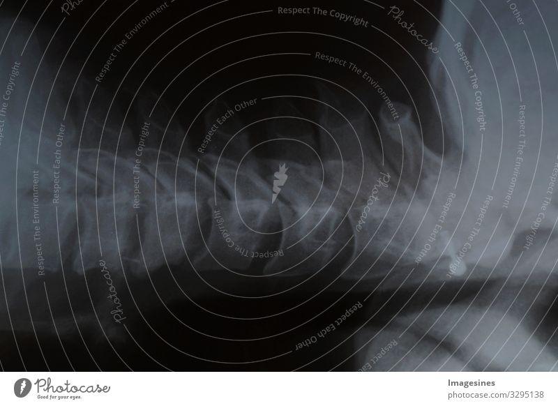 """Bandscheibenvorfall Röntgenbild Röntgenstrahlen Röntgenblick Arzt Strahlung Krankenhaus Krankheit Gesundheitswesen """"Magnetresonanz bild,menschliche Wirbelsäule"""