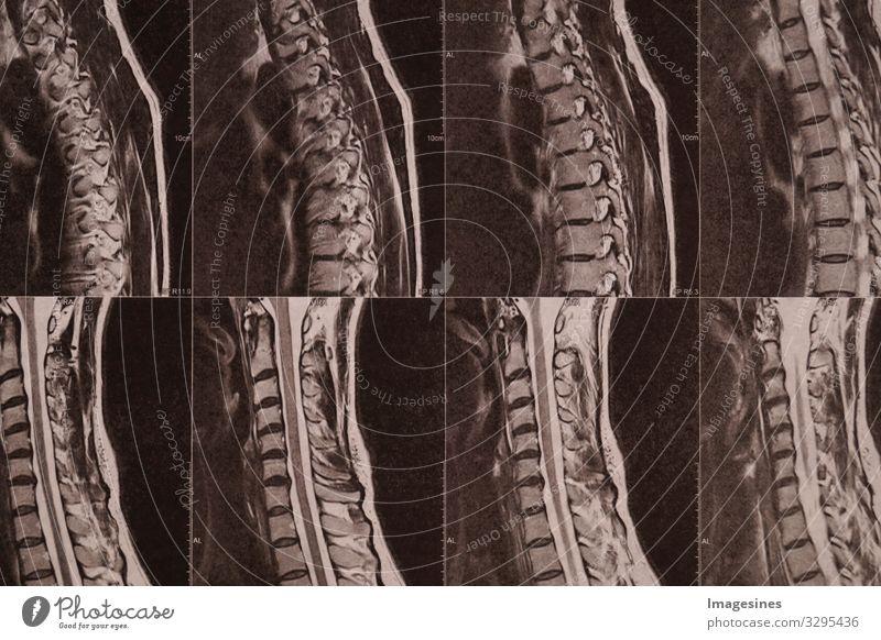 Bandscheiben Labor Arzt Medizintechnik Medizinisches Instrument Röntgenbild Krankenhaus Industrie Handwerk Röntgenstrahlen CT MRT Radiologie